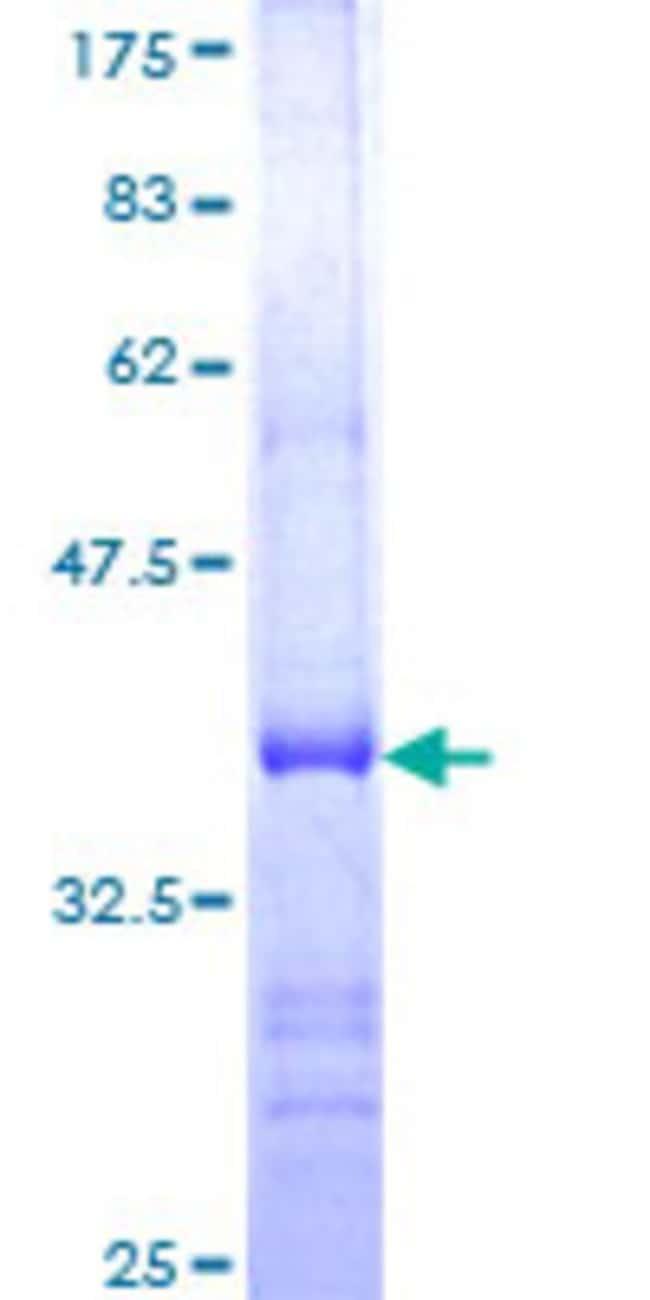 AbnovaHuman USP21 Partial ORF (NP_036607, 466 a.a. - 565 a.a.) Recombinant