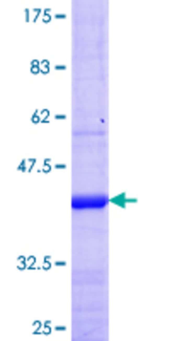 Abnova Human KCNV1 Partial ORF (NP_055194.1, 26 a.a. - 124 a.a.) Recombinant