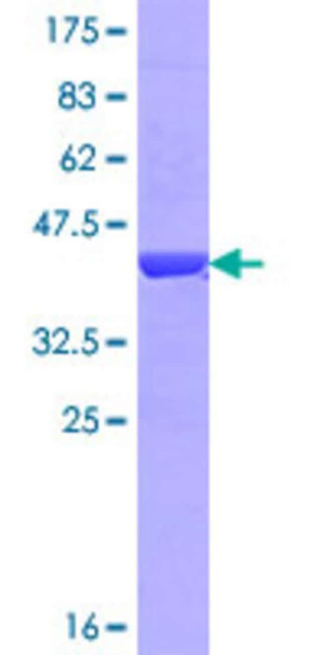 AbnovaHuman NPHP3 Partial ORF (NP_694972.3, 106 a.a. - 205 a.a.) Recombinant