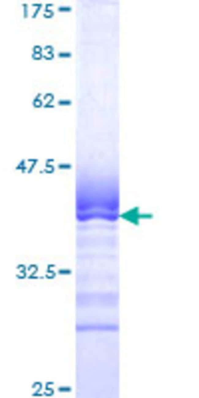 Abnova™Human SIGLEC7 Partial ORF (NP_055200, 377 a.a. - 466 a.a.) Recombinant Protein with GST-tag at N-terminal 10μg Abnova™Human SIGLEC7 Partial ORF (NP_055200, 377 a.a. - 466 a.a.) Recombinant Protein with GST-tag at N-terminal