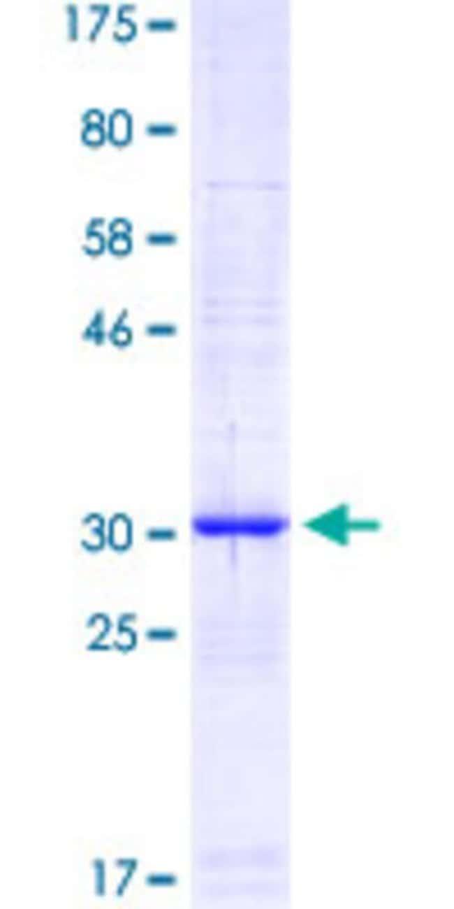 Abnova Human PELP1 Partial ORF (AAW80659.1, 337 a.a. - 410 a.a.) Recombinant