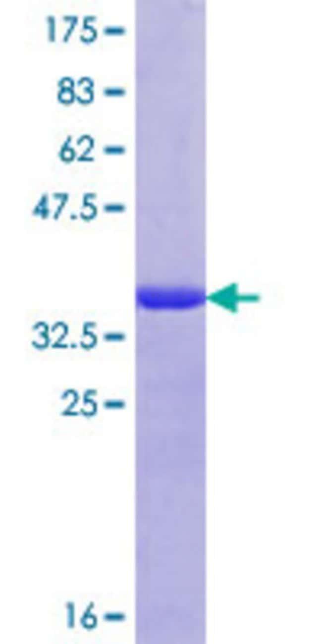 AbnovaHuman SND1 Partial ORF (BAG35238.1, 791 a.a. - 885 a.a.) Recombinant