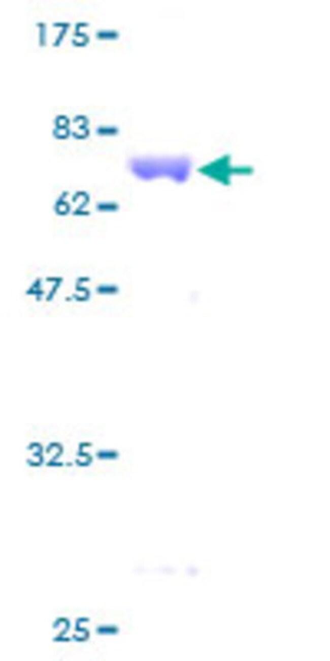 AbnovaHuman ANKRD1 Full-length ORF (AAH18667, 1 a.a. - 319 a.a.) Recombinant