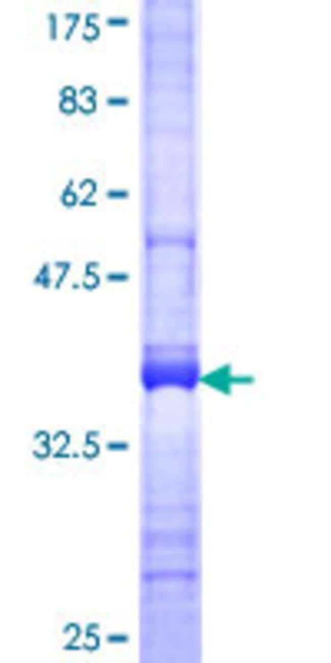 Abnova™ Human DAPP1 Partial ORF (NP_055210, 1 a.a. - 108 a.a.) Recombinant Protein with GST-tag at N-terminal 25μg Abnova™ Human DAPP1 Partial ORF (NP_055210, 1 a.a. - 108 a.a.) Recombinant Protein with GST-tag at N-terminal