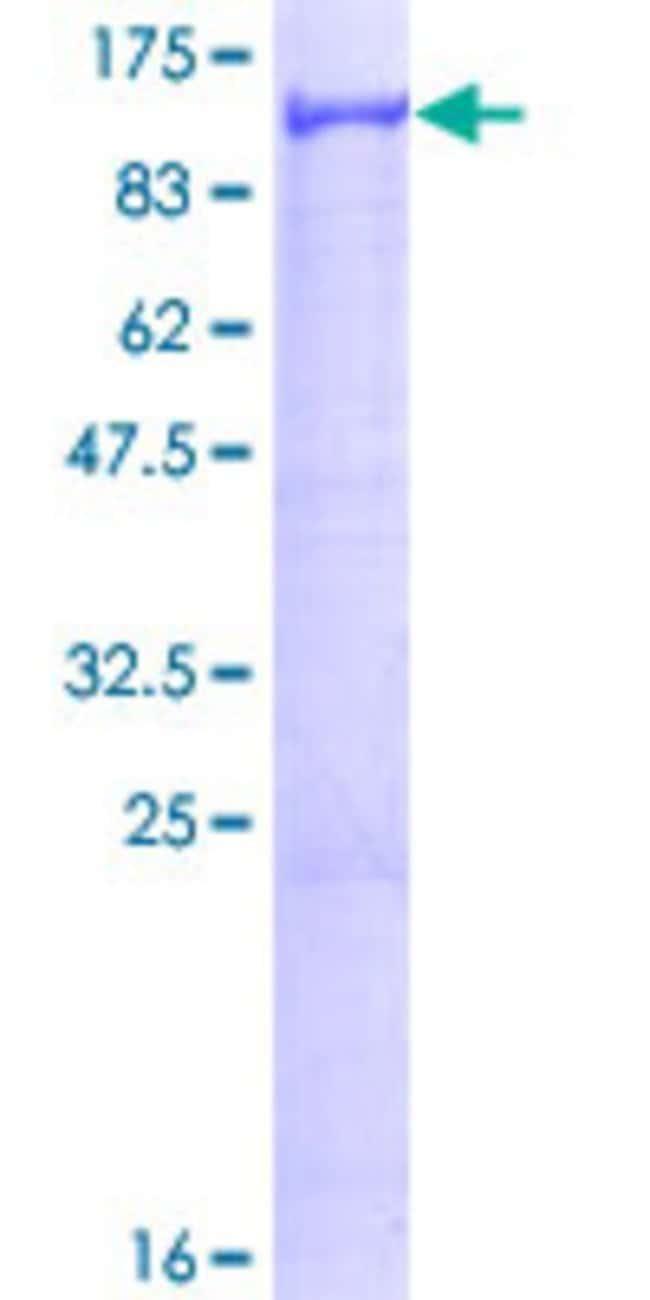 AbnovaHuman VPS41 Full-length ORF (P49754, 1 a.a. - 854 a.a.) Recombinant