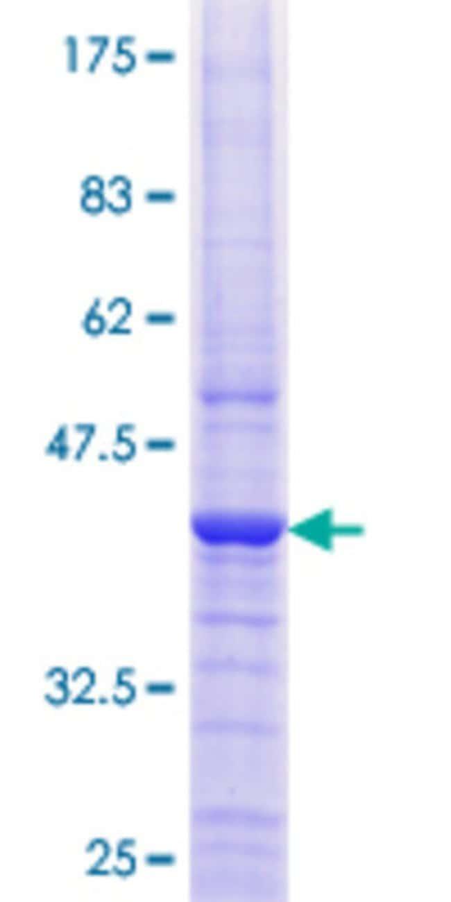 AbnovaHuman EPPB9 Full-length ORF (AAH02944.1, 1 a.a. - 153 a.a.) Recombinant