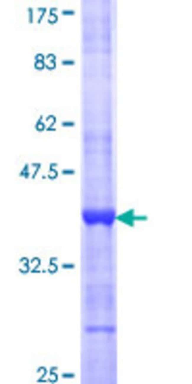 AbnovaHuman B3GAT1 Partial ORF (NP_061114, 235 a.a. - 332 a.a.) Recombinant