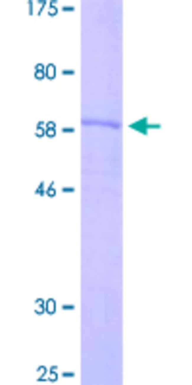 AbnovaHuman B3GAT1 Partial ORF (ABM86204.1, 28 a.a. - 334 a.a.) Recombinant