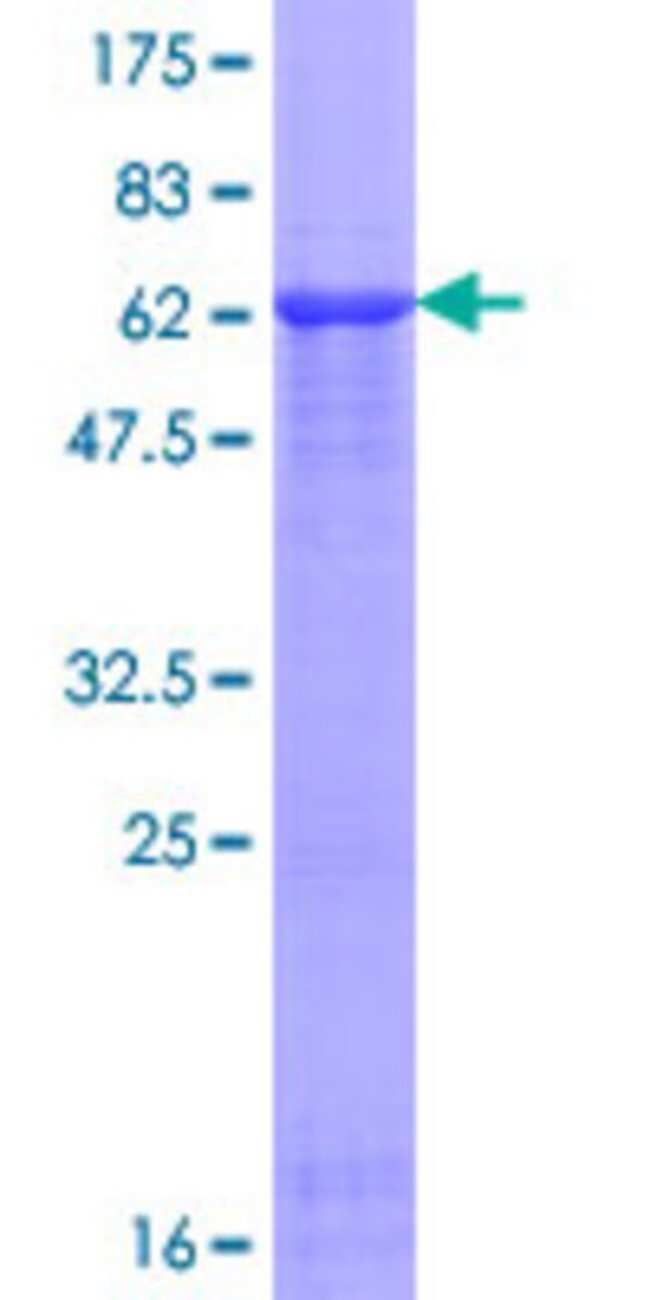 AbnovaHuman TAF5L Full-length ORF (NP_001020418.1, 1 a.a. - 325 a.a.) Recombinant
