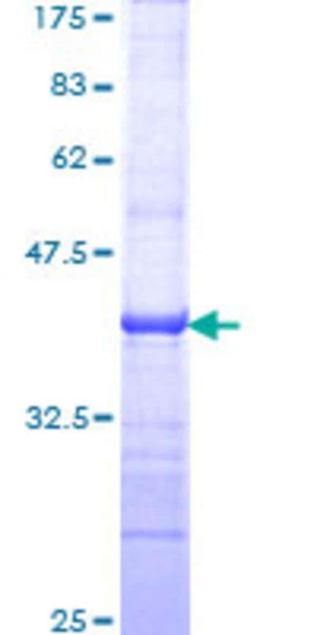 AbnovaHuman TAF5L Partial ORF (NP_055224, 1 a.a. - 117 a.a.) Recombinant