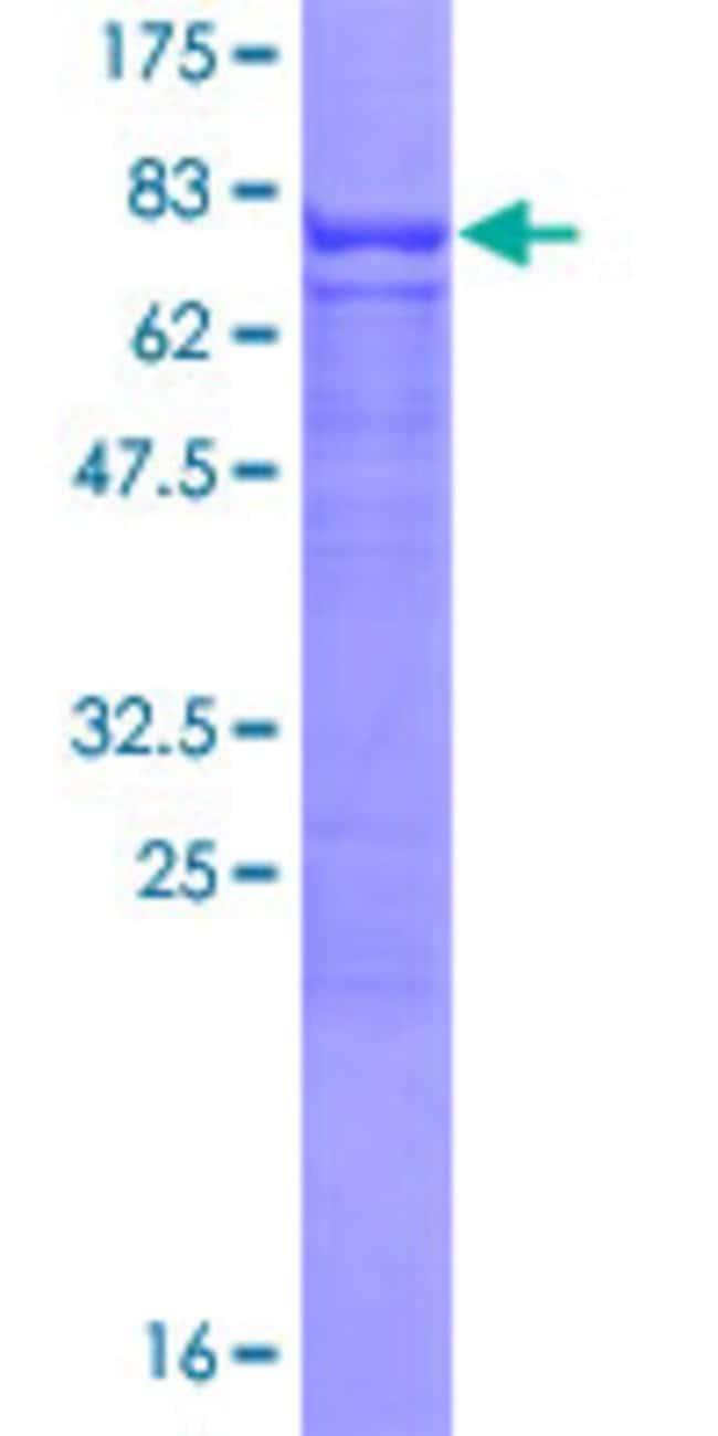 AbnovaHuman CLUL1 Full-length ORF (NP_055225.1, 1 a.a. - 466 a.a.) Recombinant