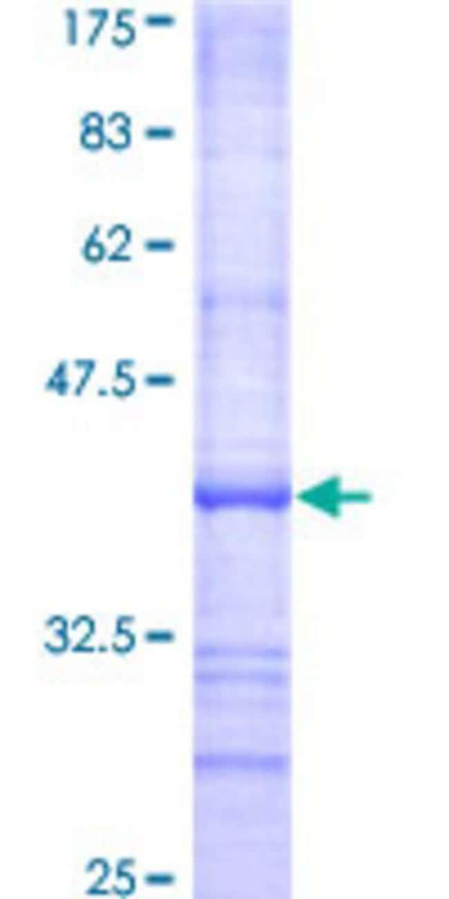 AbnovaHuman EIF2AK1 Partial ORF (AAH06524, 81 a.a. - 180 a.a.) Recombinant
