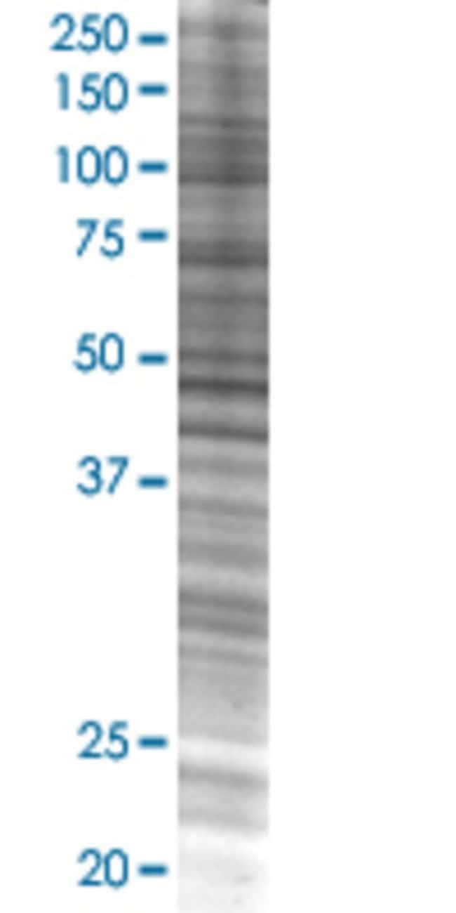 AbnovaAFF4 293T Cell Transient Overexpression Lysate (Denatured) 100μL:Protein