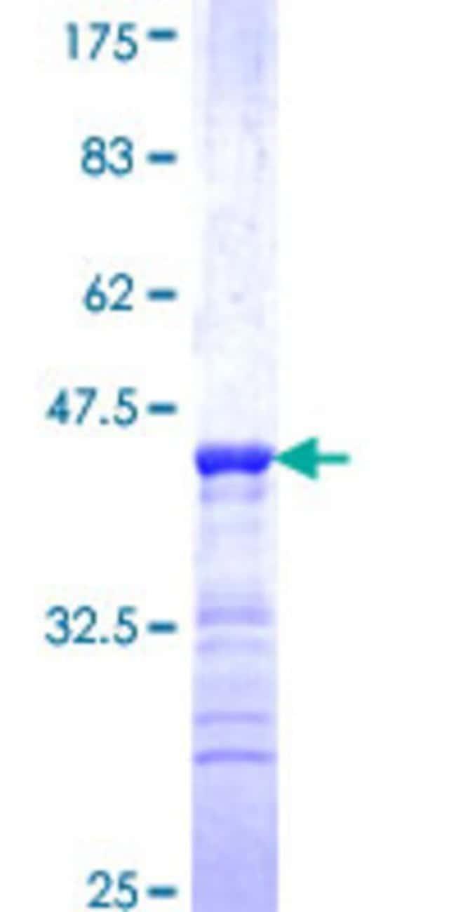 AbnovaHuman PSCD4 Partial ORF (NP_037517, 2 a.a. - 89 a.a.) Recombinant
