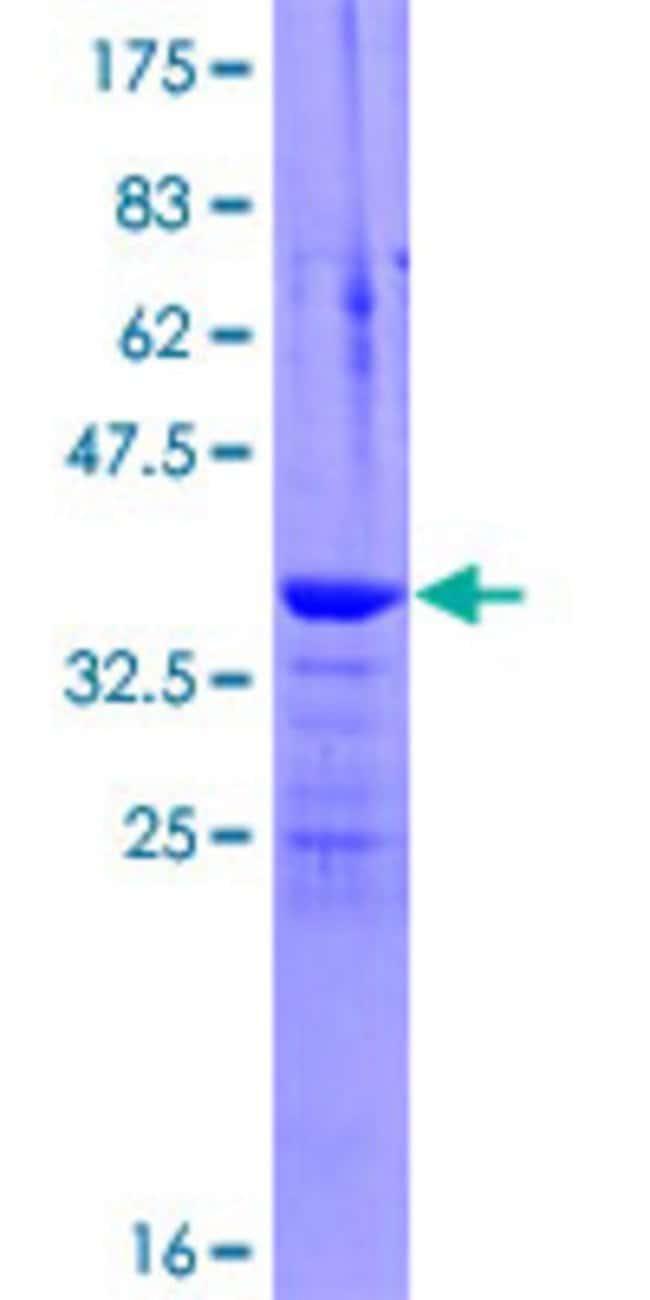 AbnovaHuman INVS Full-length ORF (ENSP00000364056, 1 a.a. - 101 a.a.) Recombinant