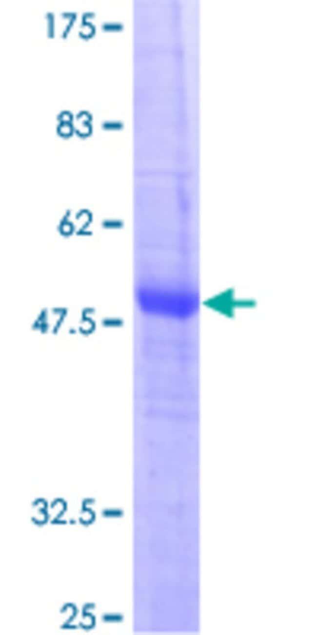AbnovaHuman CIDEB Full-length ORF (AAH35970, 1 a.a. - 219 a.a.) Recombinant