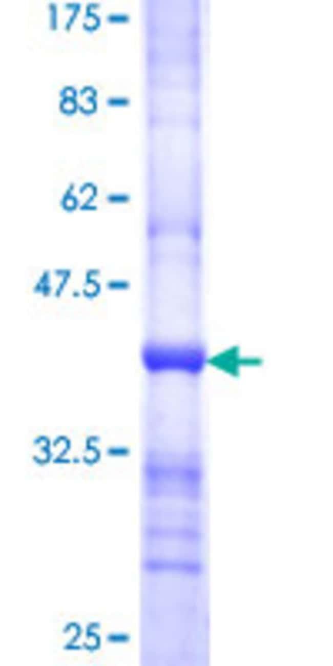 AbnovaHuman NDOR1 Partial ORF (NP_055249, 498 a.a. - 595 a.a.) Recombinant