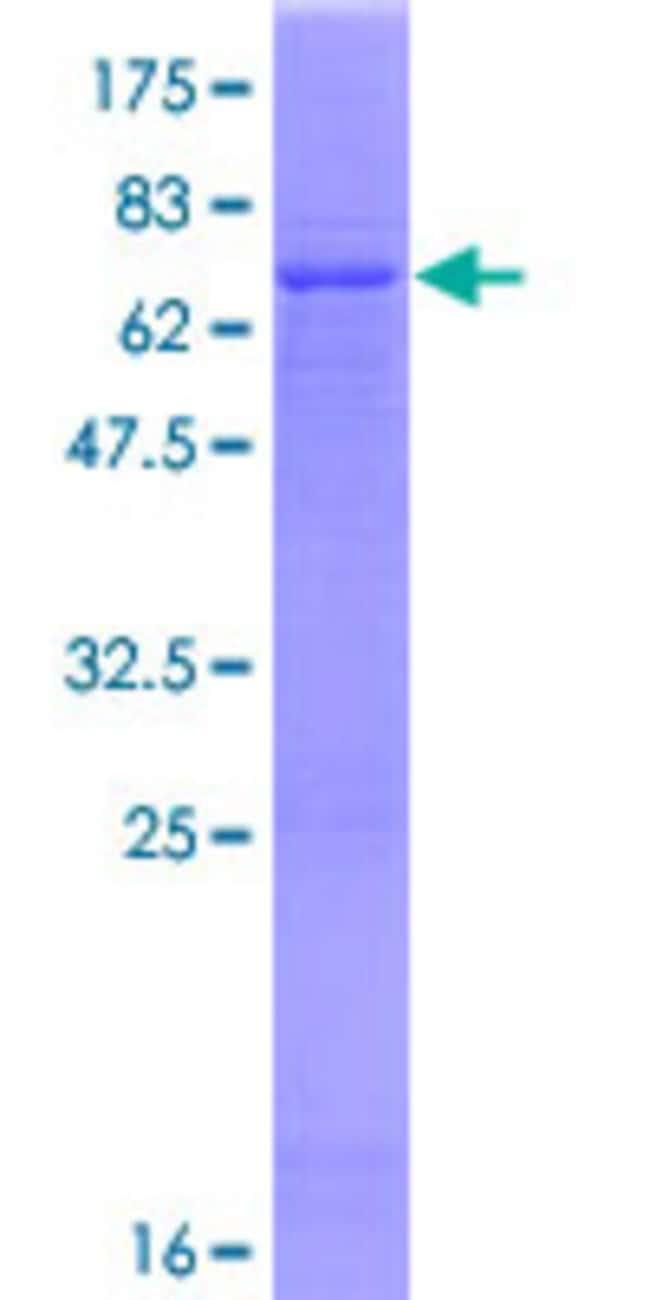 AbnovaHuman CHIA Full-length ORF (NP_068569.2, 1 a.a. - 368 a.a.) Recombinant