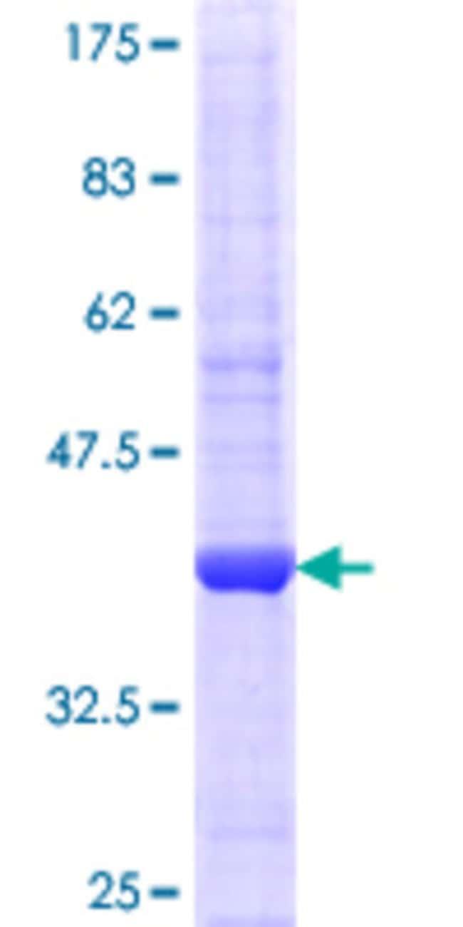 AbnovaHuman EIF2C2 Partial ORF (NP_036286.2, 381 a.a. - 480 a.a.) Recombinant