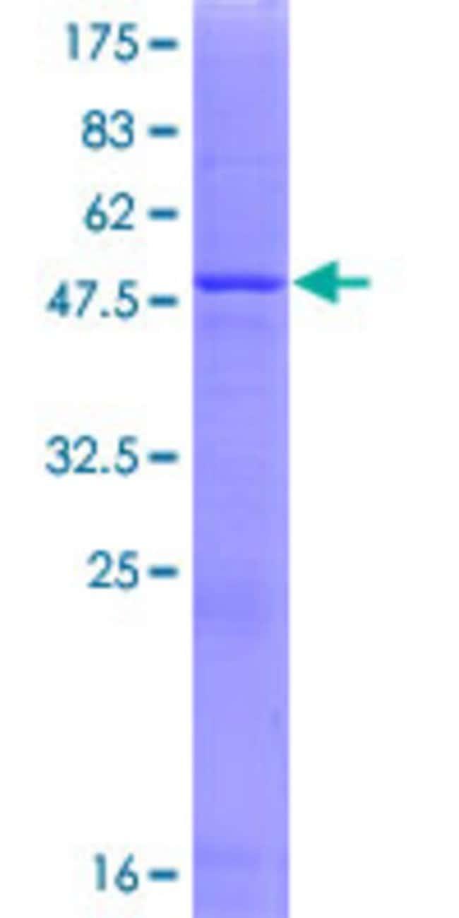 AbnovaHuman PRELID1 Full-length ORF (NP_037369.1, 1 a.a. - 219 a.a.) Recombinant