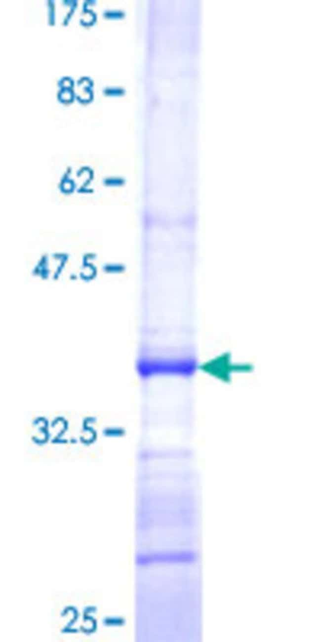 Abnova™Human PX19 Partial ORF (NP_037369, 3 a.a. - 100 a.a.) Recombinant Protein with GST-tag at N-terminal 10μg Abnova™Human PX19 Partial ORF (NP_037369, 3 a.a. - 100 a.a.) Recombinant Protein with GST-tag at N-terminal