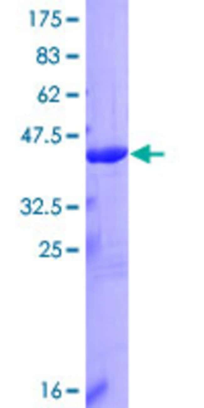 Abnova™Human IL1F6 Full-length ORF (NP_055255.1, 1 a.a. - 158 a.a.) Recombinant Protein with GST-tag at N-terminal 25μg Abnova™Human IL1F6 Full-length ORF (NP_055255.1, 1 a.a. - 158 a.a.) Recombinant Protein with GST-tag at N-terminal