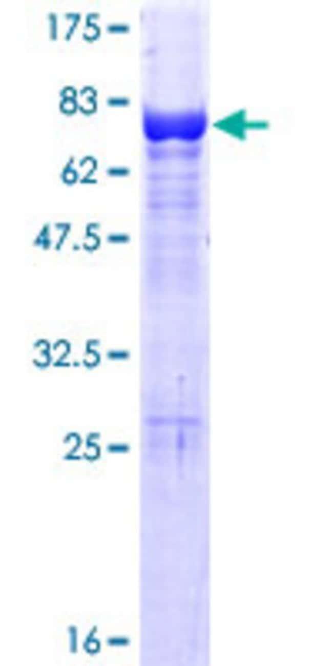 AbnovaHuman VPS4A Full-length ORF (NP_037377.1, 1 a.a. - 437 a.a.) Recombinant