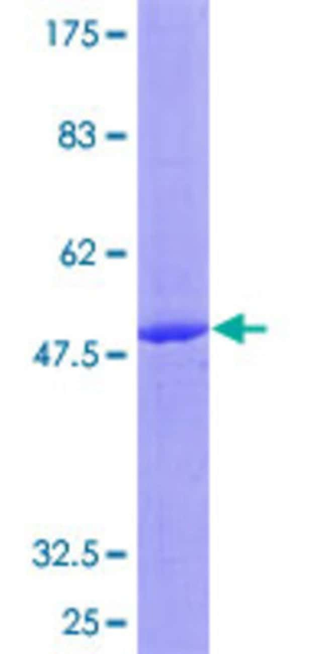 Abnova Human IL17C Full-length ORF (NP_037410.1, 1 a.a. - 197 a.a.) Recombinant