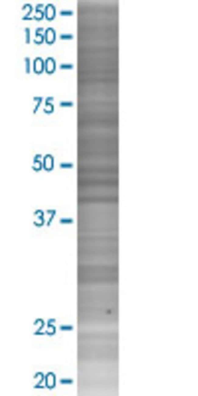 Abnova IL17B 293T Cell Transient Overexpression Lysate (Denatured) 100µL:Life