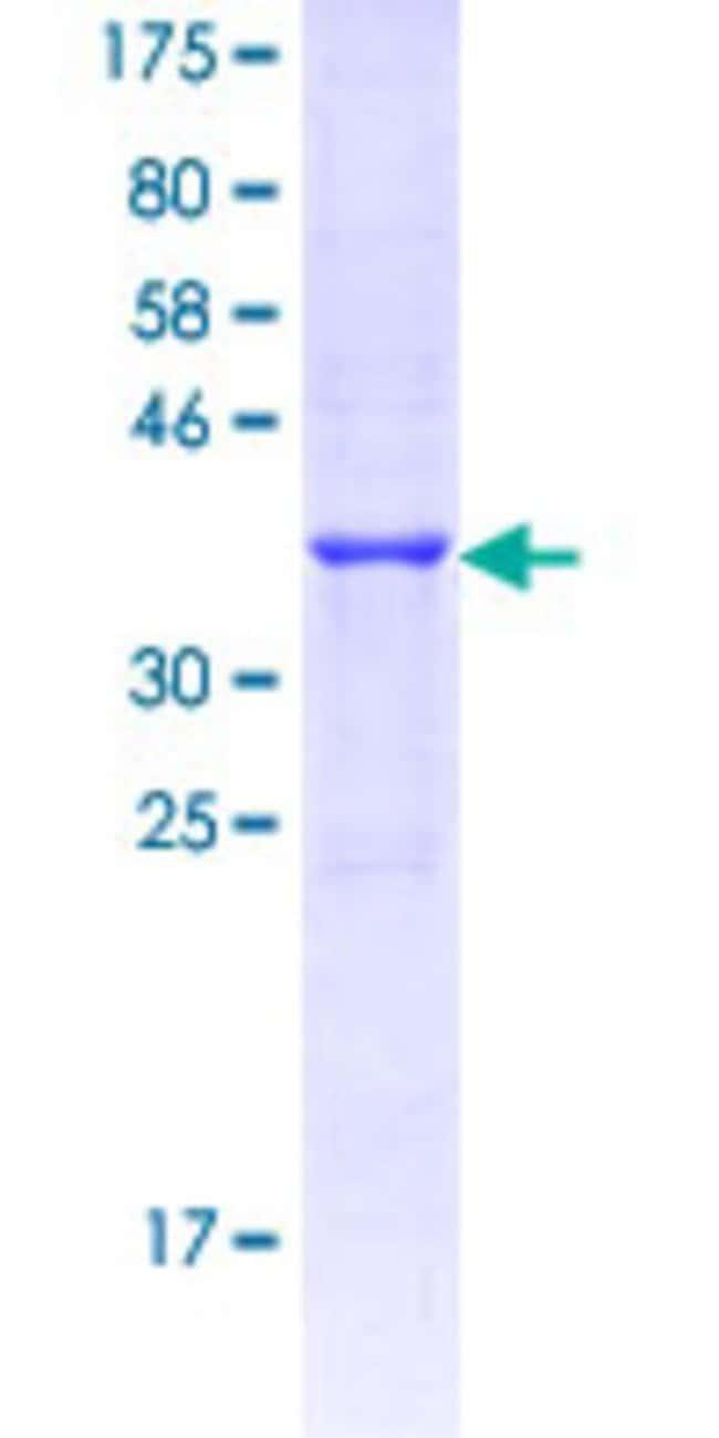 AbnovaHuman GPR81 Partial ORF (NP_115943.1, 247 a.a. - 346 a.a.) Recombinant