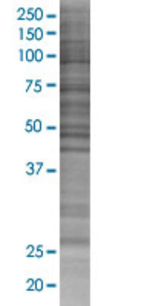 Abnova ITGB1BP3 293T Cell Transient Overexpression Lysate (Denatured) (T02)