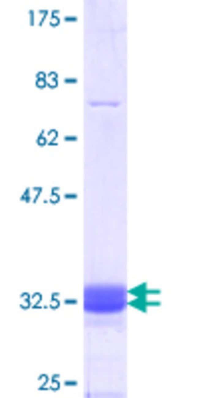 AbnovaHuman COQ2 Partial ORF (NP_056512.3, 84 a.a. - 132 a.a.) Recombinant