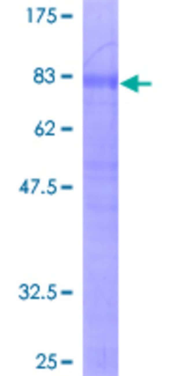 AbnovaHuman TNFRSF21 Full-length ORF (AAH10241, 1 a.a. - 472 a.a.) Recombinant