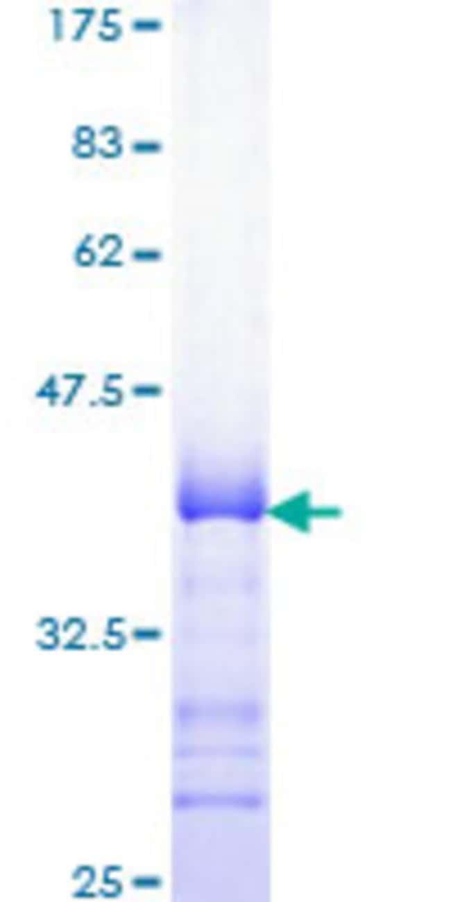 AbnovaHuman SESN1 Partial ORF (NM_014454, 271 a.a. - 370 a.a.) Recombinant