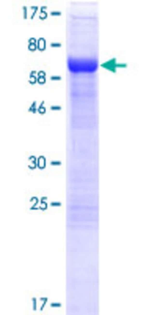 AbnovaHuman AHDC1 Full-length ORF (AAH14394.2, 1 a.a. - 399 a.a.) Recombinant