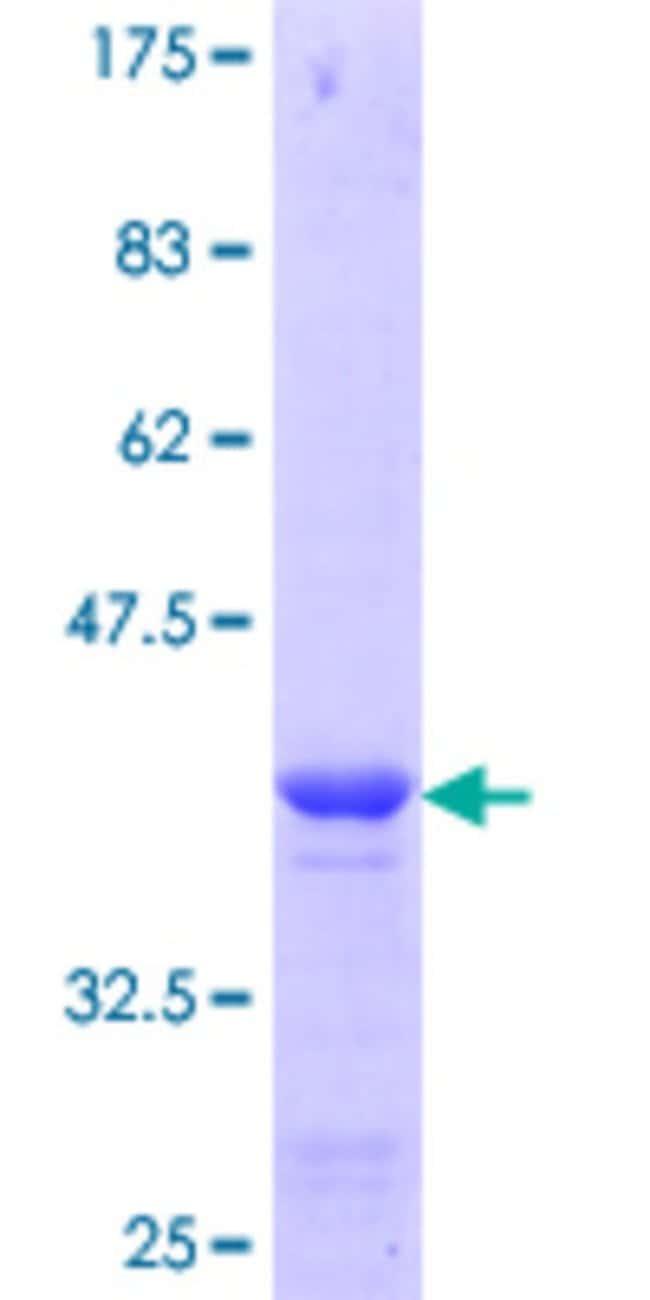 Abnova Human LSM1 Partial ORF (NP_055277.1, 34 a.a. - 133 a.a.) Recombinant