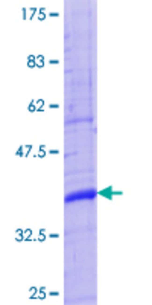 AbnovaHuman TINAG Partial ORF (NP_055279.2, 2 a.a. - 100 a.a.) Recombinant