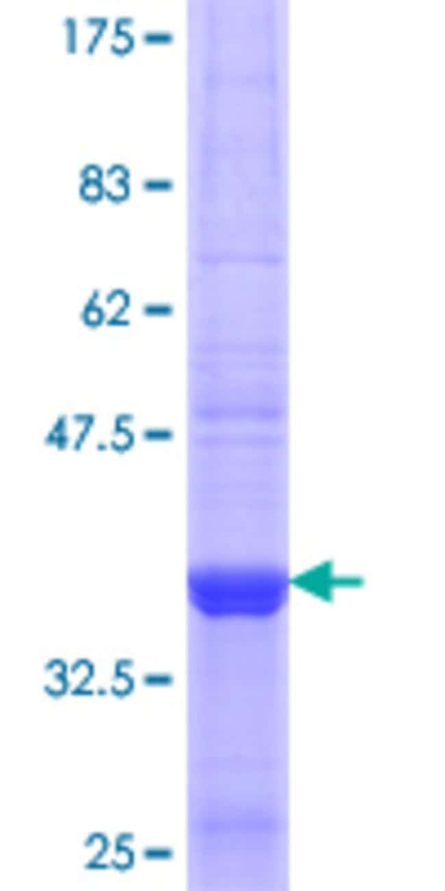 AbnovaHuman SULT1B1 Partial ORF (NP_055280.2, 1 a.a. - 99 a.a.) Recombinant