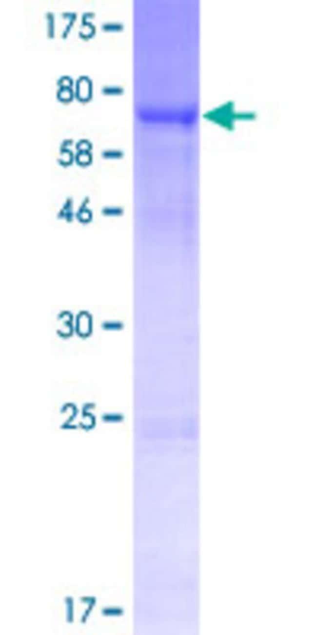 AbnovaHuman SRPX2 Full-length ORF (NP_055282.1, 1 a.a. - 465 a.a.) Recombinant