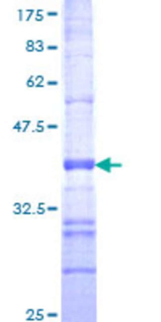 AbnovaHuman RND1 Partial ORF (NP_055285, 133 a.a. - 232 a.a.) Recombinant