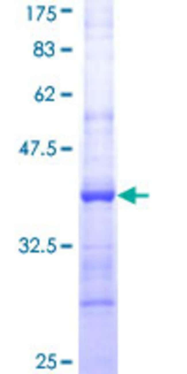 AbnovaHuman SMPDL3B Partial ORF (NP_001009568, 274 a.a. - 372 a.a.) Recombinant