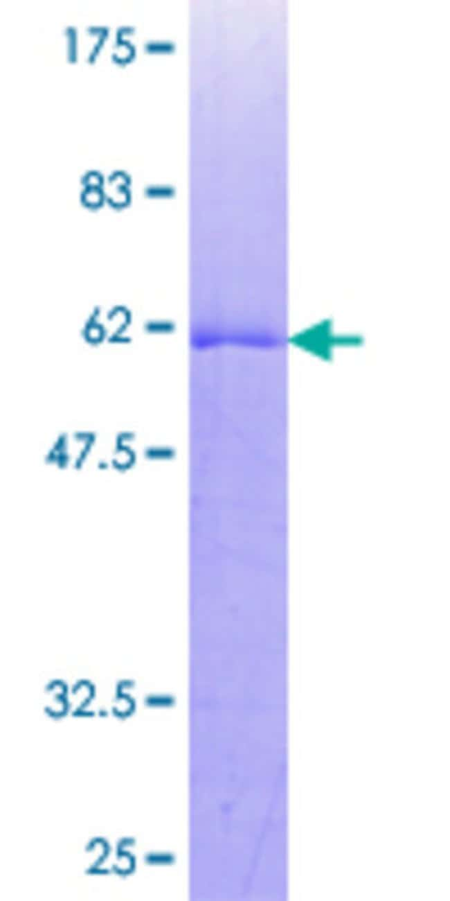 Abnova™Human C20orf10 Full-length ORF (NP_055292.1, 1 a.a. - 290 a.a.) Recombinant Protein with GST-tag at N-terminal 10μg Abnova™Human C20orf10 Full-length ORF (NP_055292.1, 1 a.a. - 290 a.a.) Recombinant Protein with GST-tag at N-terminal