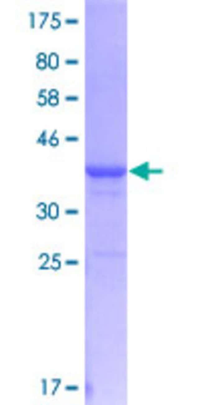 AbnovaHuman ADAMDEC1 Partial ORF (NP_055294, 361 a.a. - 470 a.a.) Recombinant