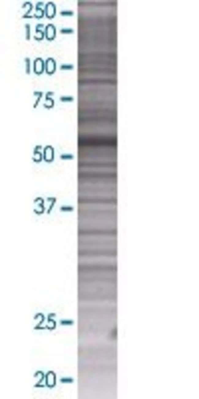 AbnovaAPEX2 293T Cell Transient Overexpression Lysate (Denatured) 100μL:Protein