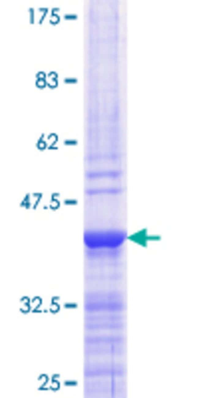 AbnovaHuman ANGPTL3 Partial ORF (NP_055310.1, 361 a.a. - 460 a.a.) Recombinant