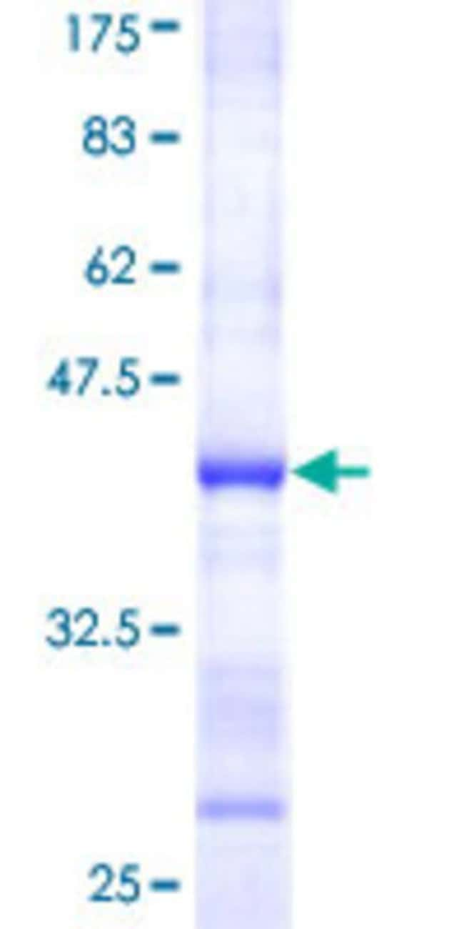 Abnova™Human RPS6KA6 Partial ORF (NP_055311.1, 636 a.a. - 745 a.a.) Recombinant Protein with GST-tag at N-terminal 10μg Abnova™Human RPS6KA6 Partial ORF (NP_055311.1, 636 a.a. - 745 a.a.) Recombinant Protein with GST-tag at N-terminal