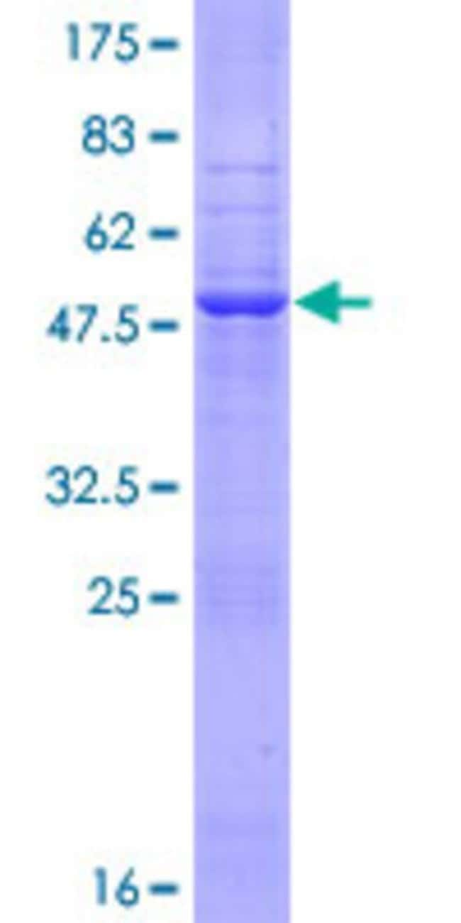 AbnovaHuman EIF3S12 Full-length ORF (NP_037366.1, 1 a.a. - 218 a.a.) Recombinant