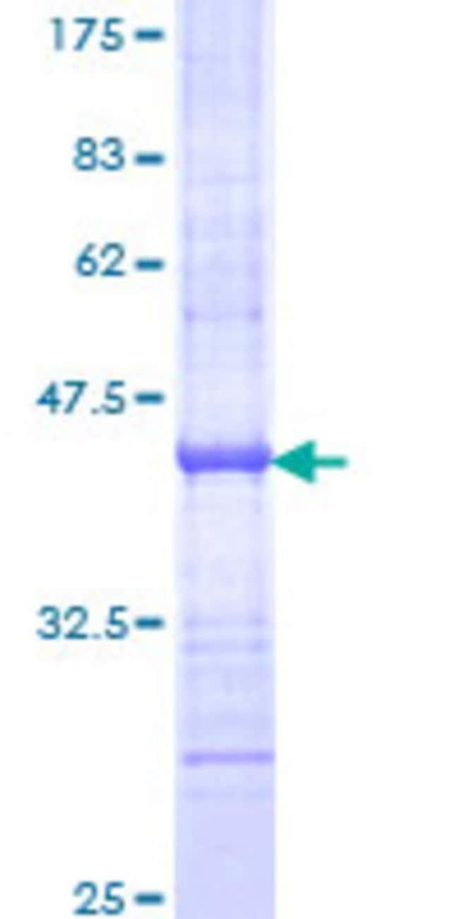 AbnovaHuman DRIM Partial ORF (NP_055318, 946 a.a. - 1053 a.a.) Recombinant