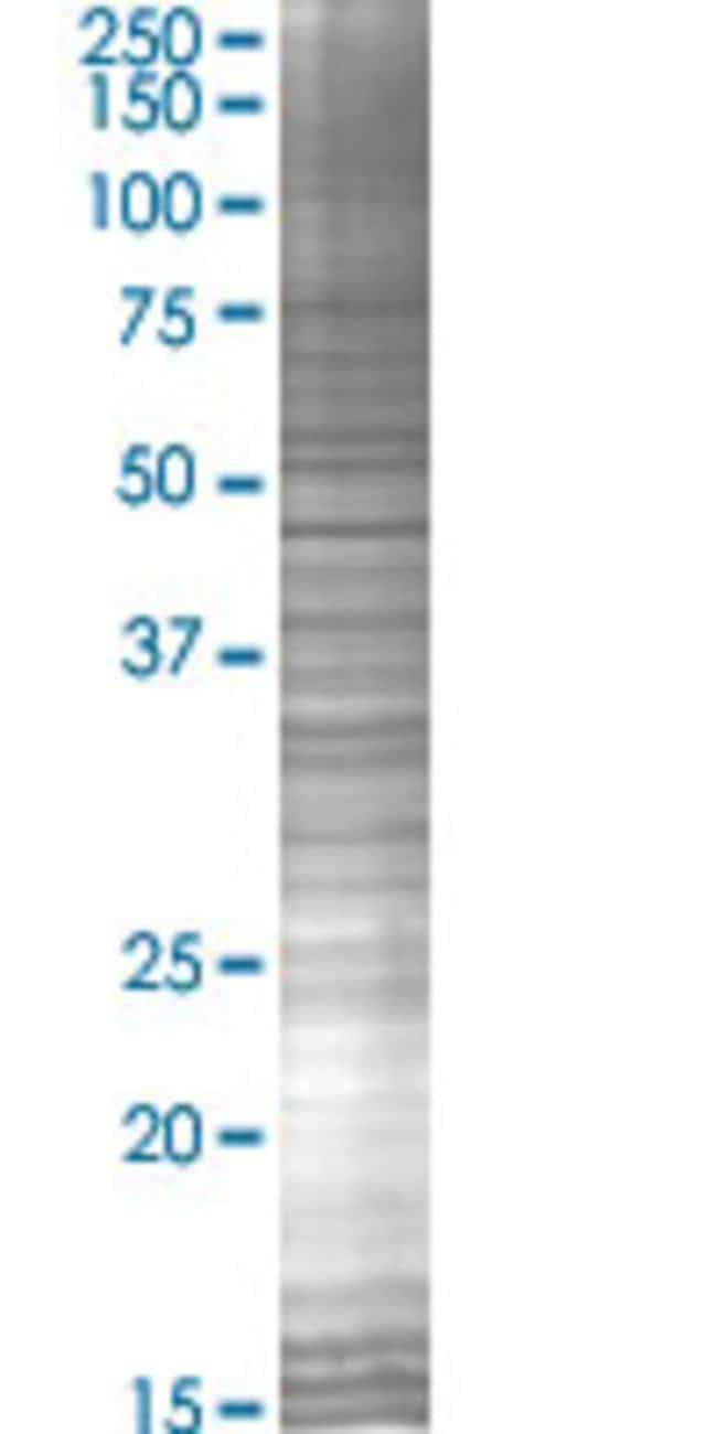 Abnova KCNMB4 293T Cell Transient Overexpression Lysate (Denatured) 100µL:Life