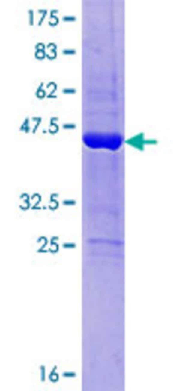 Abnova™Human D15Wsu75e Full-length ORF (NP_056519.1, 1 a.a. - 168 a.a.) Recombinant Protein with GST-tag at N-terminal 10μg Abnova™Human D15Wsu75e Full-length ORF (NP_056519.1, 1 a.a. - 168 a.a.) Recombinant Protein with GST-tag at N-terminal